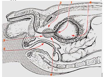 Лечение аденомы предстательной железы бобровой струей