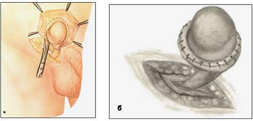 Крем для эклеров пошагово фото
