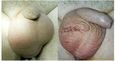 гематома после операции паховой грыжи