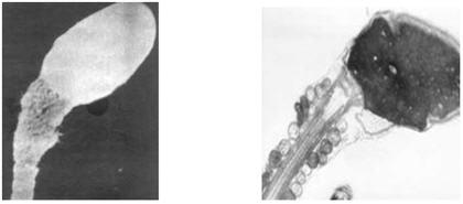 skolko-mozhet-zhdat-spermatozoid