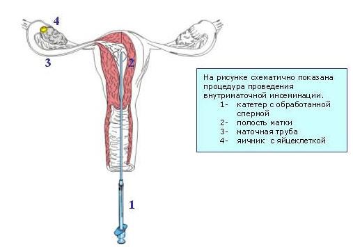 Прямое вливание спермы фото 730-110