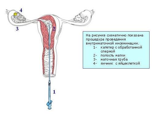 1. Катетер с обработанной спермой 2. Полость матки 3. Маточная труба 4. Яич